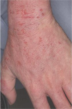 【ドクターズコラム】ダニアレルギーが関与する代表的 ...